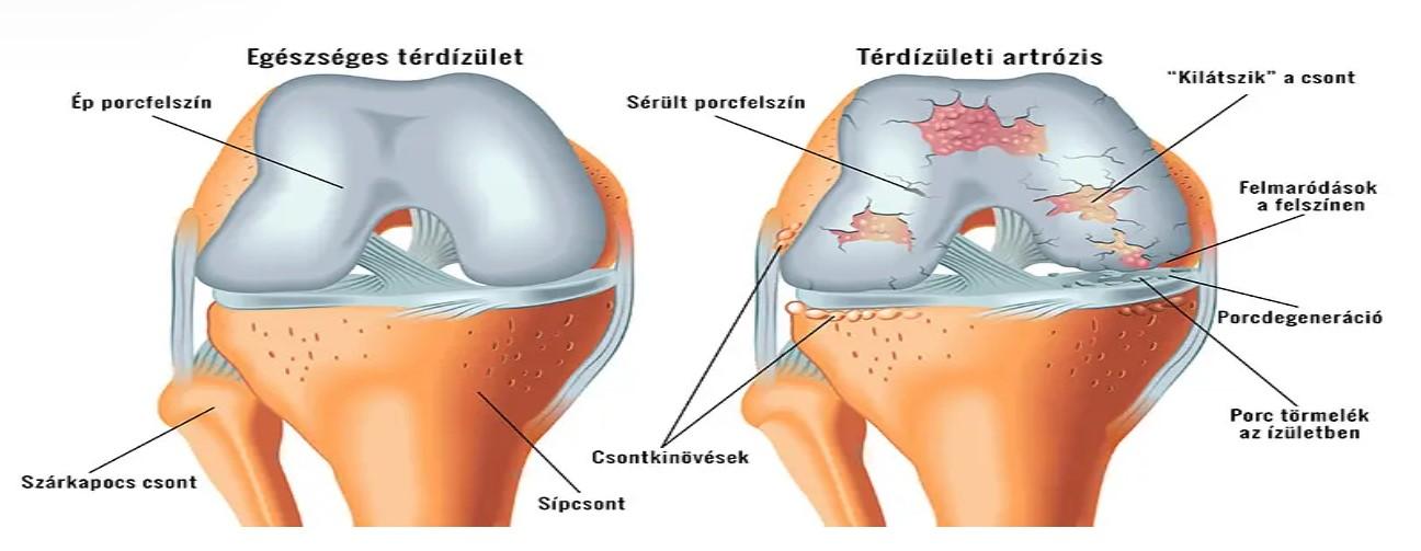 Porcleválás - oka, tünetei, kezelése, fájdalom - Fájdalomközpont