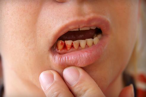 kenőcsök az oszteokondrozis súlyosbodására ízületi kezelés vizelet áttekintése