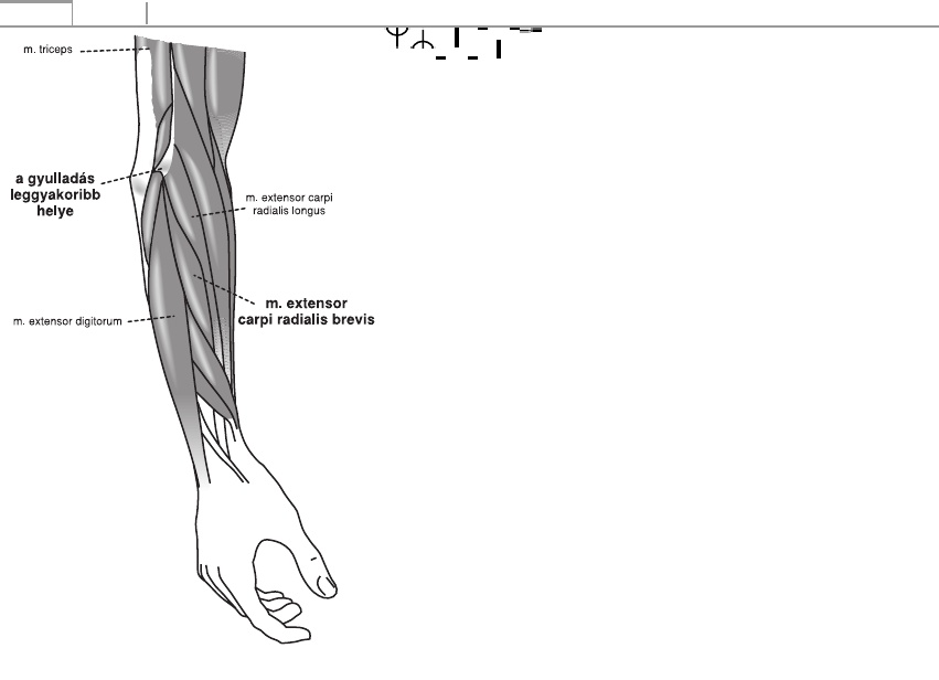 extensor sérülés a csuklóízület