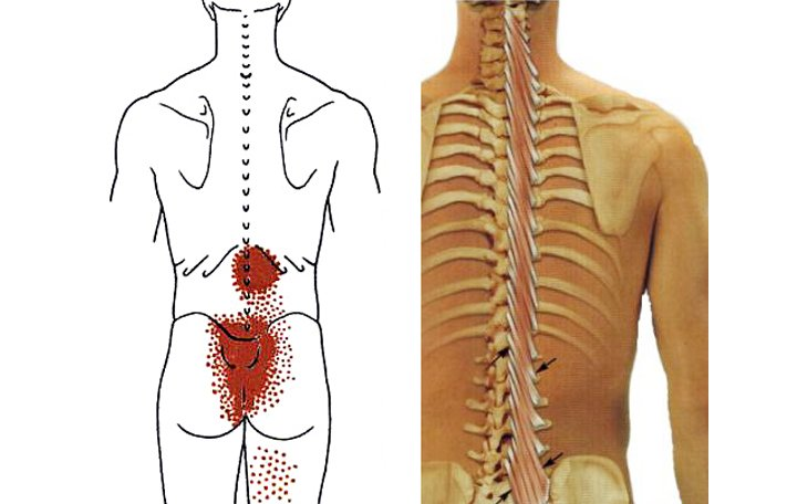 kenőcsöt a mellkasi gerinc csontritkulása csipőből sugárzó fájdalom
