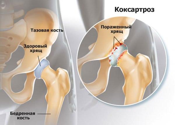 a bokaízület deformációja artrózissal