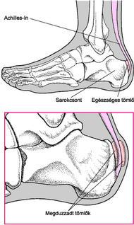 a lábfej lábujjai ízületeinek gyulladása ízületi betegségek kifejezései