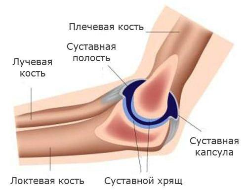 A könyök ízületi rákja - jelek, okok, túlélés