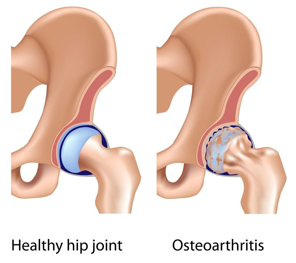 csípőízületek betegségei és tünetei folyadék a boka ízületének üregében