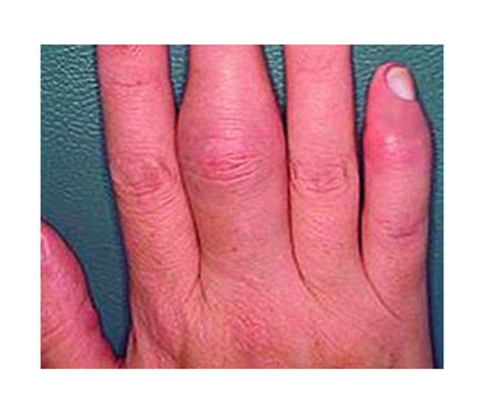 az ujjak kezelésének interphalangealis ízületei lövés fájdalom a csípőben