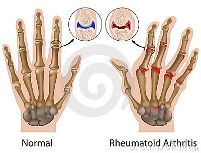 Mi a szeropozitív rheumatoid arthritis, tünetek, kezelés és étrend?