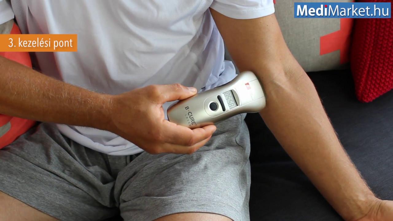 ízületi lézeres kezelés artrózissal a térd patella károsodása