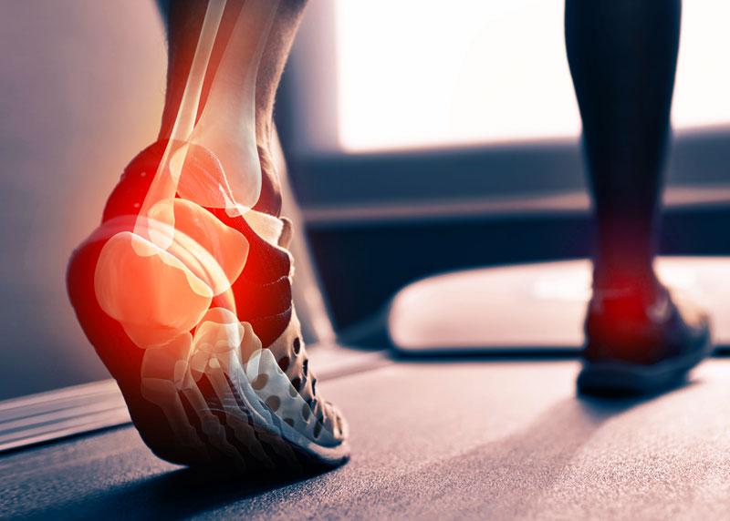 Hol és hogyan fáj a lába? | BENU Gyógyszertárak