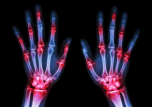 a nyaki artritisz kezelése
