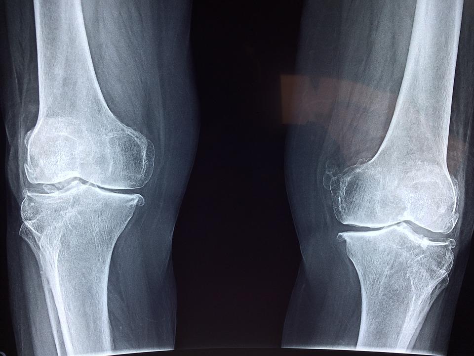 Az arthrosis népi gyógymódok otthoni kezelése - Csukló July