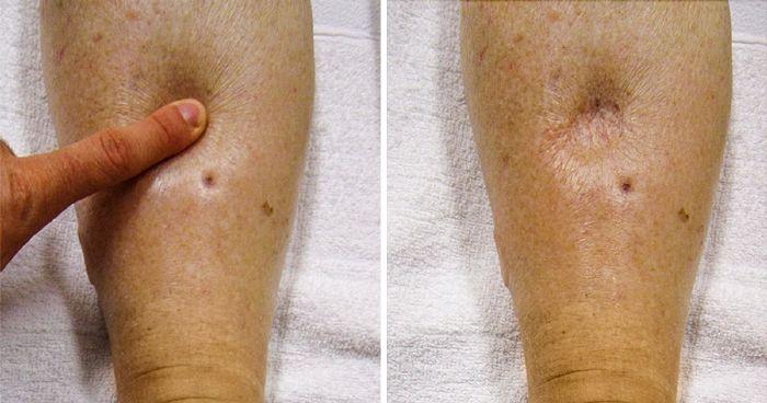 csináld magad kenőcsreceptek az ízületi gyulladásról a térd gonarthrosis artrózisa, mint a kezelés