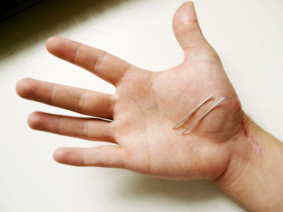 Törött könyök - Fájdalom kezelése - 2020