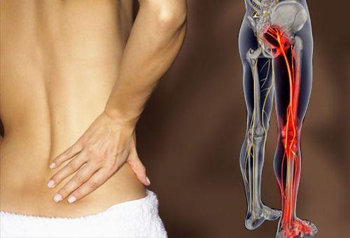 deformált artrózis térdkezelés az ízület térdben jön ki