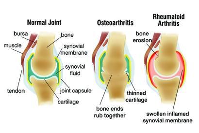 artrózis lefolyása csípőízületek teraflex kezelése