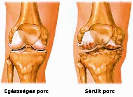 a csuklóízület és a kéz duzzanata az ujjak ízületeinek fájdalmának diagnosztizálása
