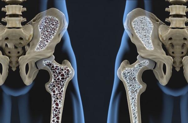 csontritkulás milyen krém