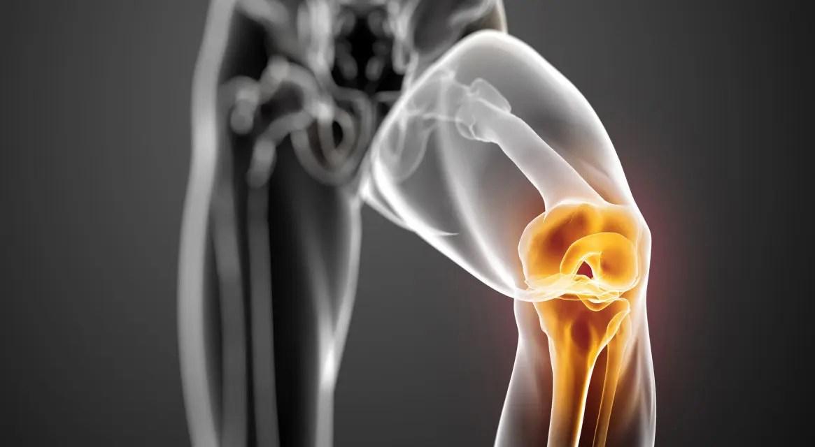 a jobb térdízület mediális meniszkuszának krónikus károsodása ízületi fájdalom és görcs