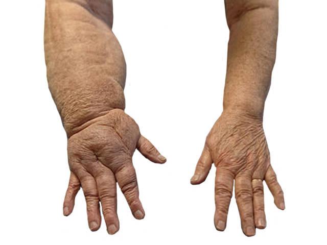 ödéma kezelése artrózissal