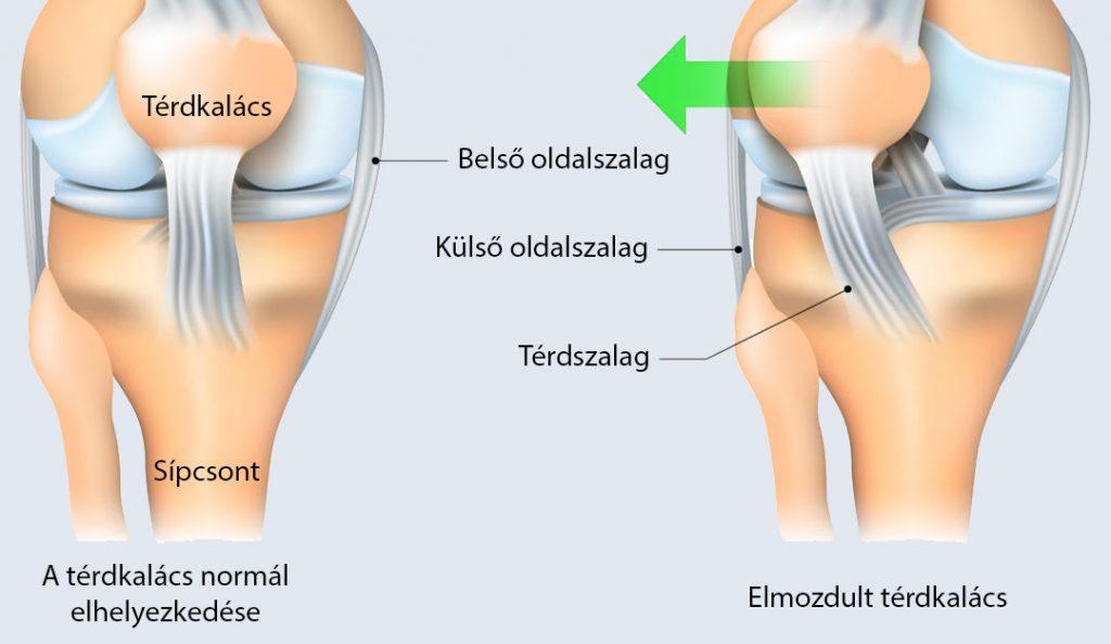 fájdalom a térdízület dimexidumában