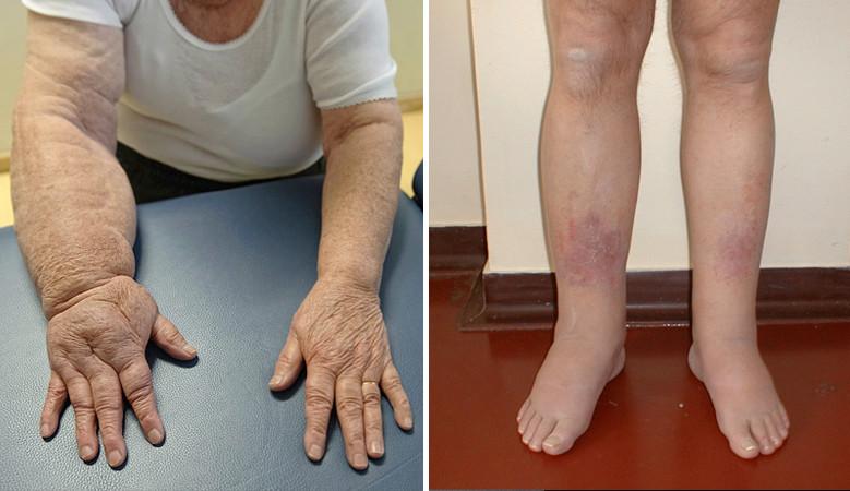 fájdalom a lábak ízületeiben kemoterápia után