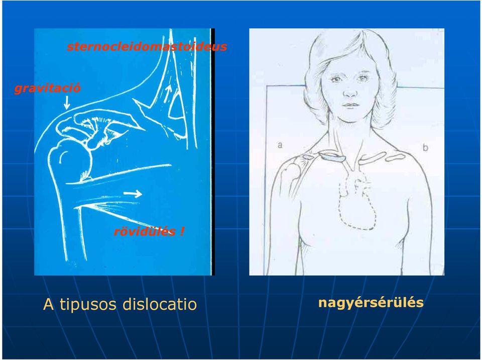 a vállízület myositis kezelése