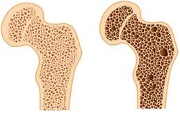 fáj a második lábujj ízülete a könyökízület varus deformációja
