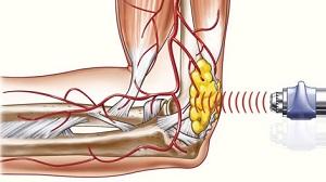 a lábak ízületei fájnak, mit kell tenni, mint kezelni poszt-traumás vállízület artrózis hogyan kell kezelni