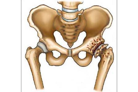 az ívek kezdeti artrózisa