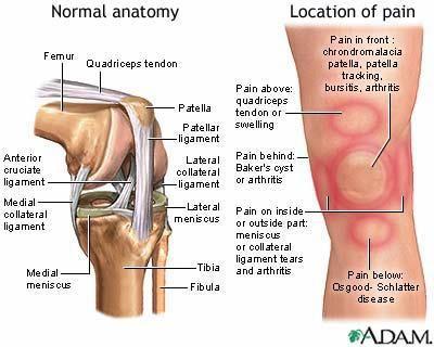 chladimiosis és ízületi fájdalmak közös kezelési készítmények sportolók számára