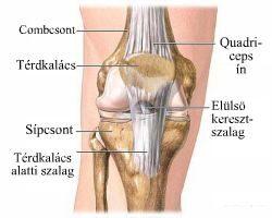 hogyan lehet kezelni a karok és a lábak artrózisát