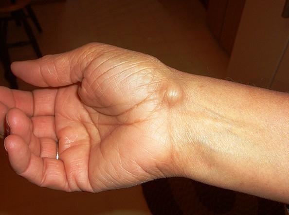 súlyos fájdalom a bal térdben akut ízületi fájdalom, mint érzéstelenítés