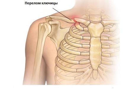 poszttraumás deformáló artrózis a boka ízületében 2 fokkal az ízületek fürdés után fájnak