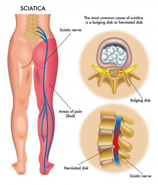a sacrum ízületeinek gyulladása voltaren a vállízület fájdalma miatt