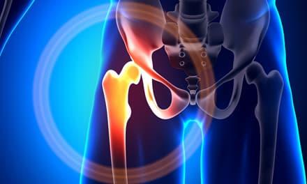 interfalangeális kapszula károsodása gyulladt ízület a lábon, hogyan kell kezelni