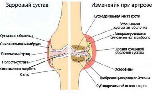 Szendrői ortopédia tankönyv kiegészítő e-learning anyag