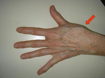 a bal kéz ujjainak ízületei fájnak