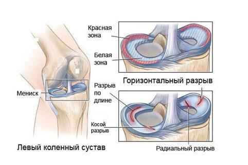 a bal térdízület oldalsó meniszkuszának károsodása ízületi gyulladás kezelésére ízületek