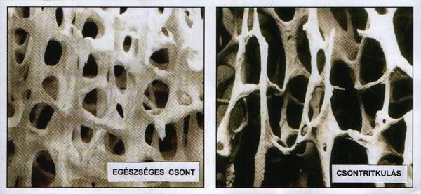 A csontritkulás kezelési lehetőségei