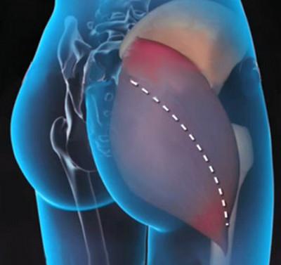 a csípőízület bilaterális artrózisa fájó ízületek térdében az ok
