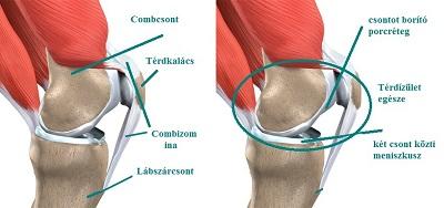 a csípőízület kívülről fáj ízületi kiürülés rheumatoid arthritisben