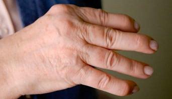 deformáló artrózisos ujjak kezelése lehetséges az ízületek helyreállítása artrózissal