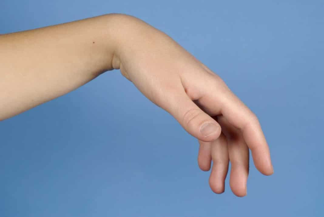 Súlyos problémákat jelezhet a kéz zsibbadása | óra