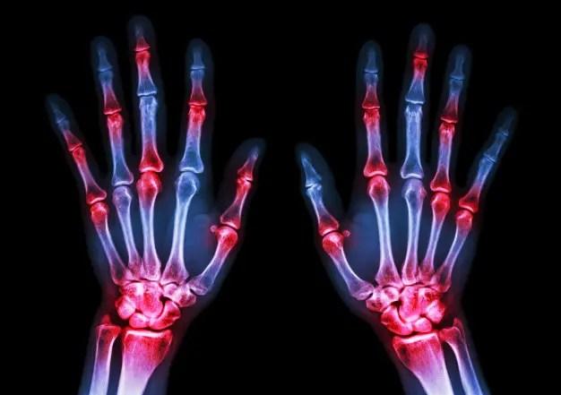 a nyaki artritisz kezelése enyhíti a csípőízületi duzzanatot