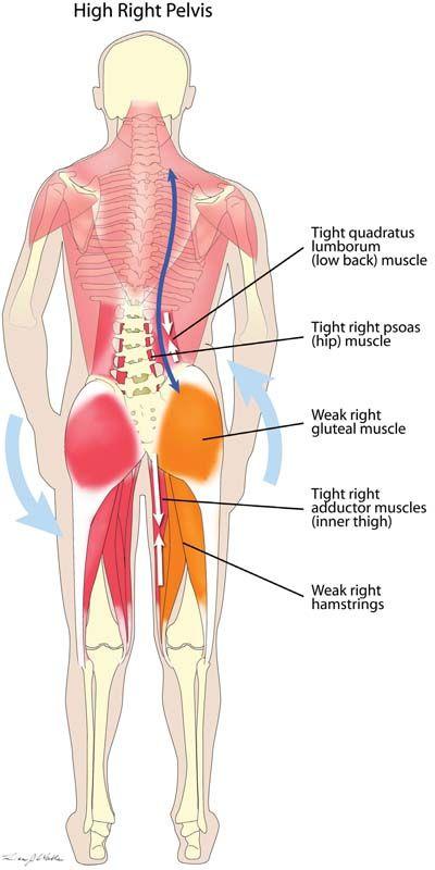 a sacrum ízületeinek gyulladása hol lehet kezelni az ízületi gyulladást