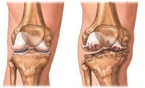 a térd deformáló artrózisának kezelésére