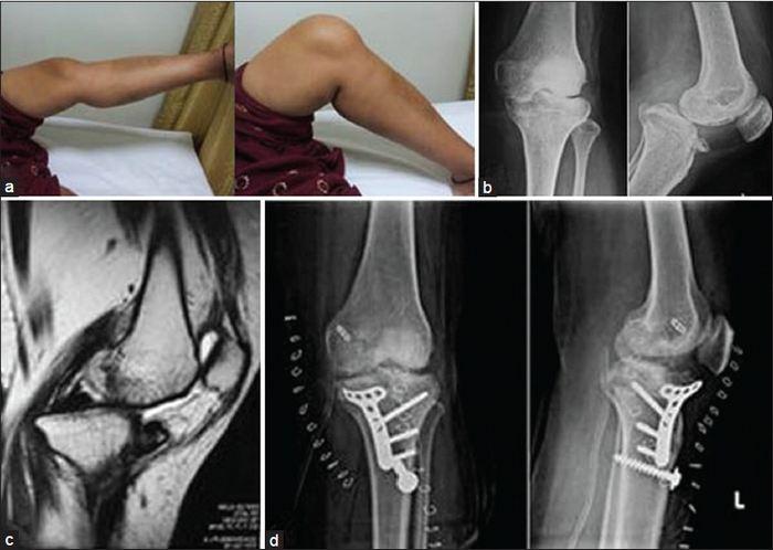 a térdízület kezelésének medialis ligamentuma részleges törése ízületi szteroid gyulladáscsökkentő