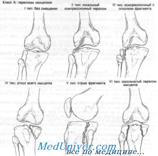 a térdízület kezelésének medialis ligamentuma részleges törése fáj a kar ízületei és hogyan lehet kezelni