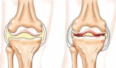 deformáló artrosis a lábak ízületeiben
