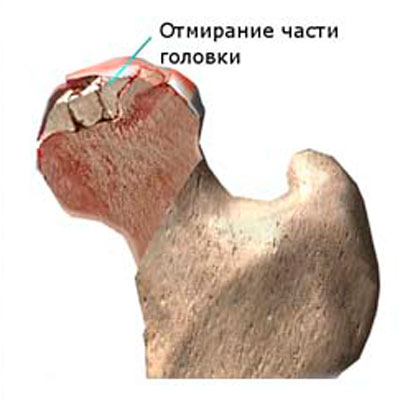 fájdalom a csípőízület gyulladásában térd chondromalacia kezelés