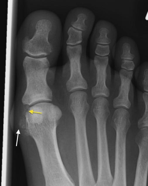 Metatarsophalangeal közös arthritis